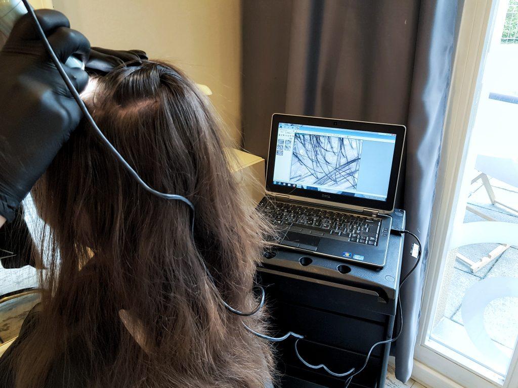 badanie microkamerą